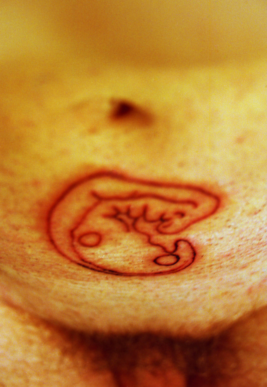 Jazva v tvare embrya